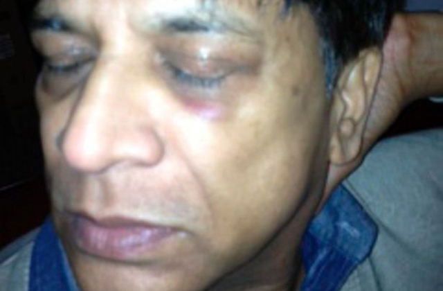 Prakash Patel after he was battered by racist thugs in Manchester in January. Photo courtesy Manchester Evening News.