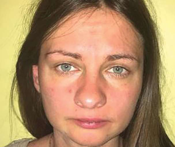 Latvian woman Liga Skromane, 33,who came to Kerala seeking ayurvedic cure for her depression, was raped and beheaded in March.